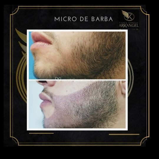 Sombreado de barba