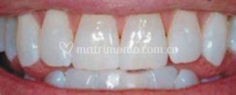 Aclaramiento dental